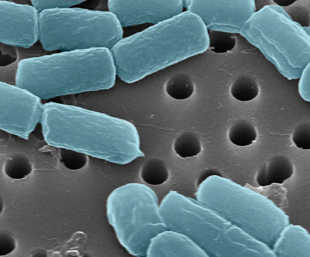 bacteria retained by track-etched membrane filters